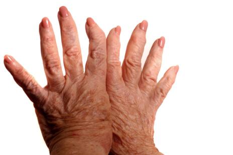 Overview-Rheumatoid-Arthritis
